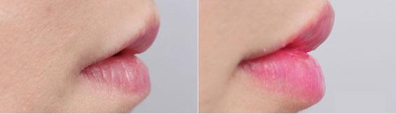 注射丰唇后效果对比