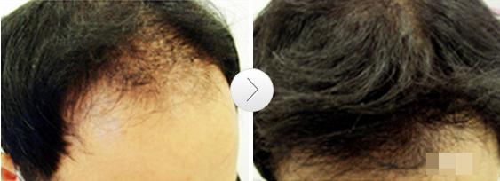 头发恢复1
