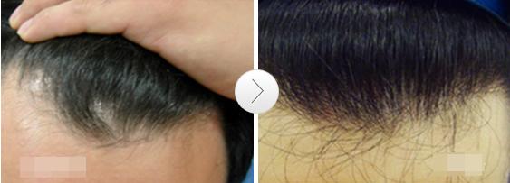 头发恢复3