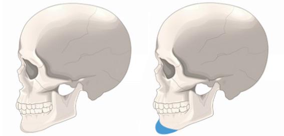 假体丰下巴手术方法