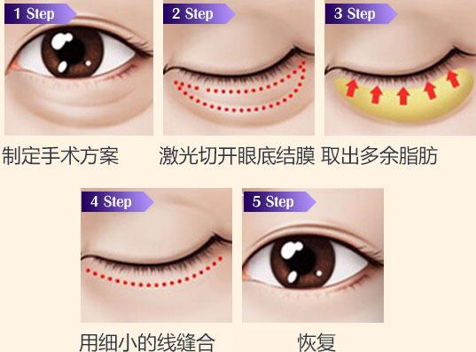 手术过程4