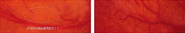 红血丝修复11