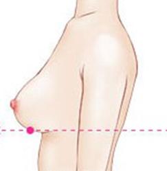 正常的乳房形态