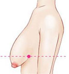 胸部严重下垂形态