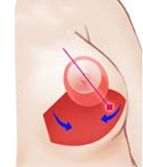 垂直切开法矫正乳房下垂