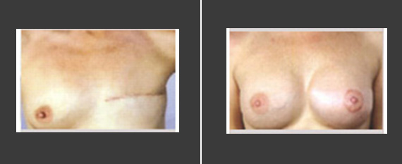 乳房再造术效果
