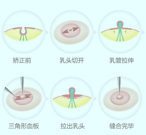 轻度乳头内陷矫正方法
