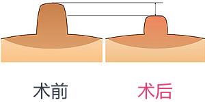 乳头缩小手术
