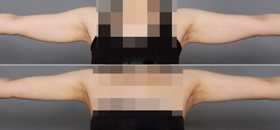 瘦手臂15