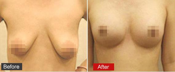 乳房下垂矫正效果
