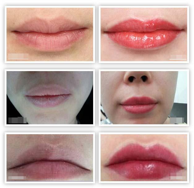 纹唇案例对比图
